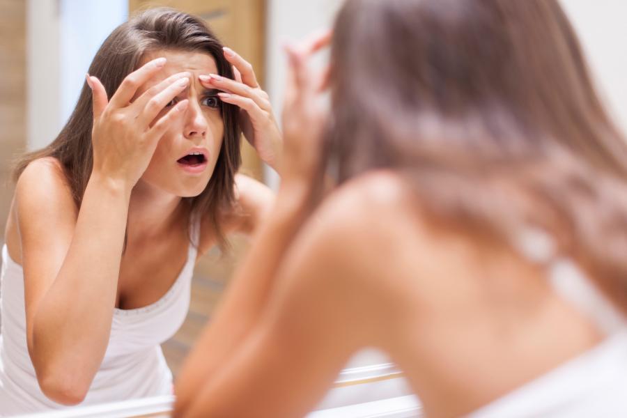 Espinillas y arrugas: los riesgos de una mala rutina al desmaquillarse